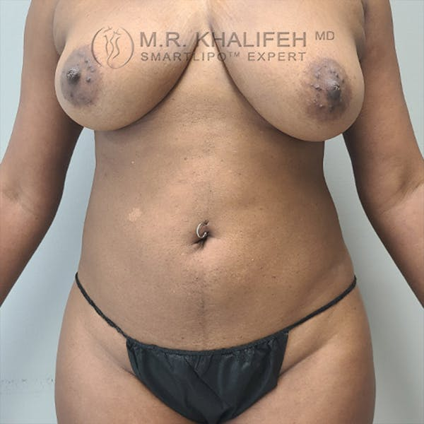Abdominal Liposuction Gallery - Patient 44540436 - Image 2