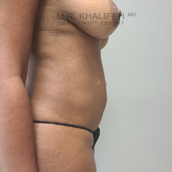 Abdominal Liposuction Gallery - Patient 44540436 - Image 4