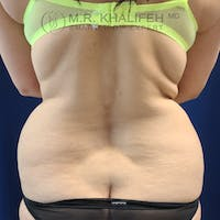 Flank-Lower Back Liposuction Gallery - Patient 44541870 - Image 1