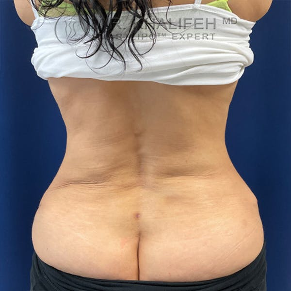 Flank-Lower Back Liposuction Gallery - Patient 44541870 - Image 2