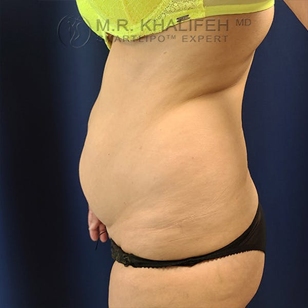 Flank-Lower Back Liposuction Gallery - Patient 44541870 - Image 5