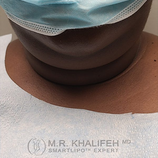 Chin and Neck Liposuction Gallery - Patient 44543010 - Image 1