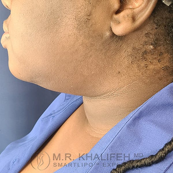 Chin and Neck Liposuction Gallery - Patient 44543010 - Image 6