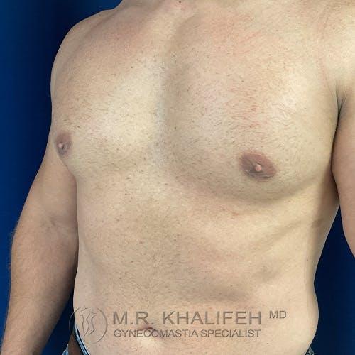 Gynecomastia Gallery - Patient 48370027 - Image 8