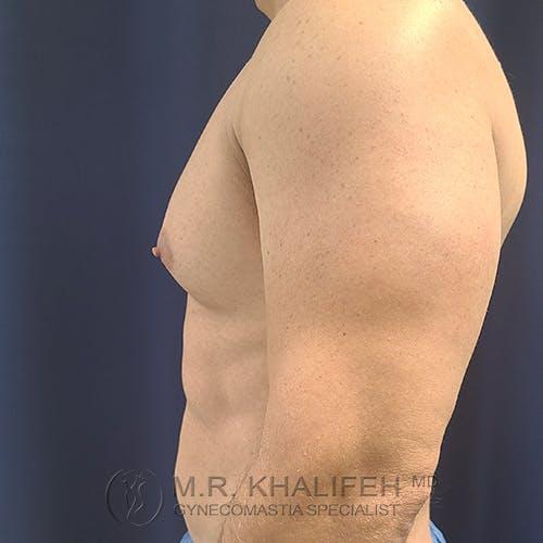 Gynecomastia Gallery - Patient 48370027 - Image 9
