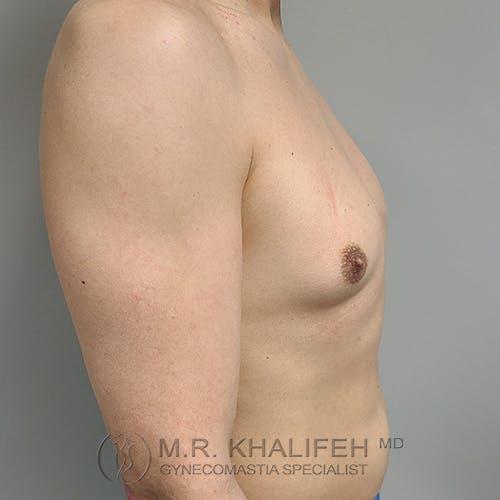 Gynecomastia Gallery - Patient 48370030 - Image 5