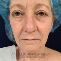 Facelift Gallery - Patient 48370040 - Image 1