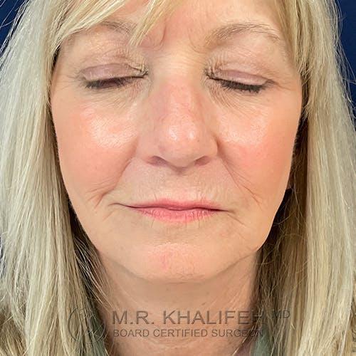 Facelift Gallery - Patient 48370040 - Image 2