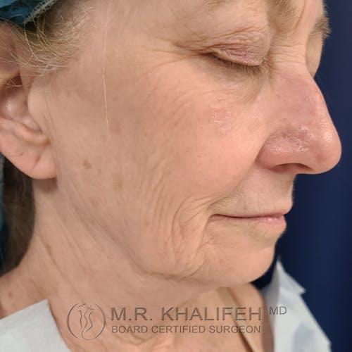 Facelift Gallery - Patient 48370040 - Image 3