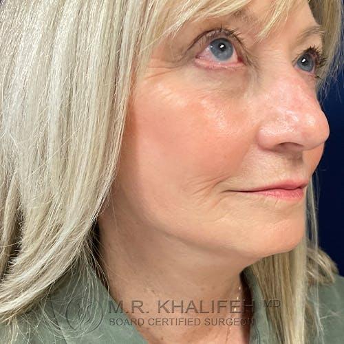 Facelift Gallery - Patient 48370040 - Image 4