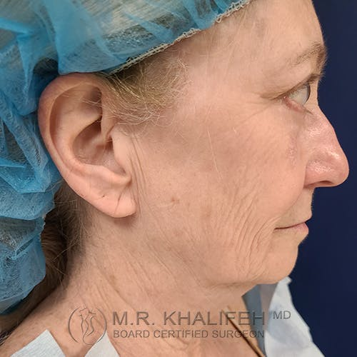 Facelift Gallery - Patient 48370040 - Image 5