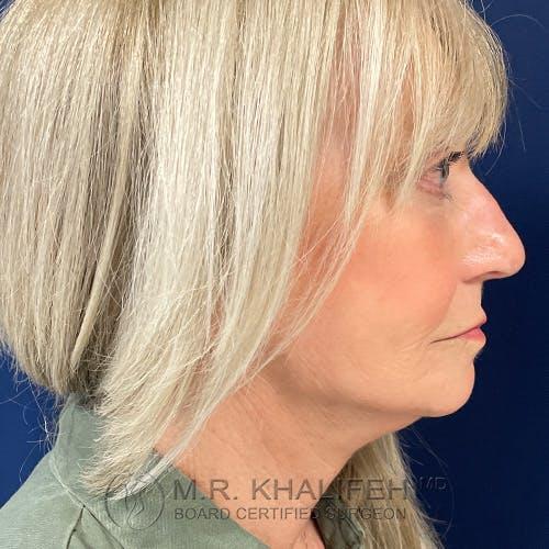 Facelift Gallery - Patient 48370040 - Image 6