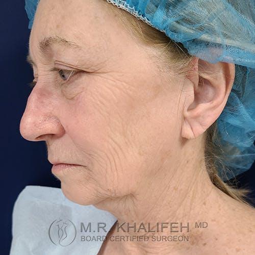 Facelift Gallery - Patient 48370040 - Image 7
