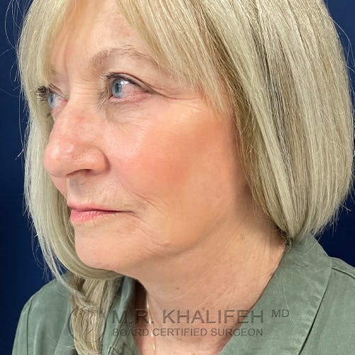 Facelift Gallery - Patient 48370040 - Image 8