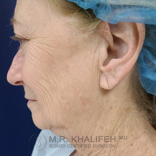 Facelift Gallery - Patient 48370040 - Image 9