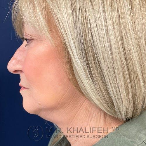Facelift Gallery - Patient 48370040 - Image 10