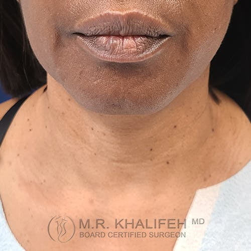Neck Lift Gallery - Patient 48370044 - Image 1