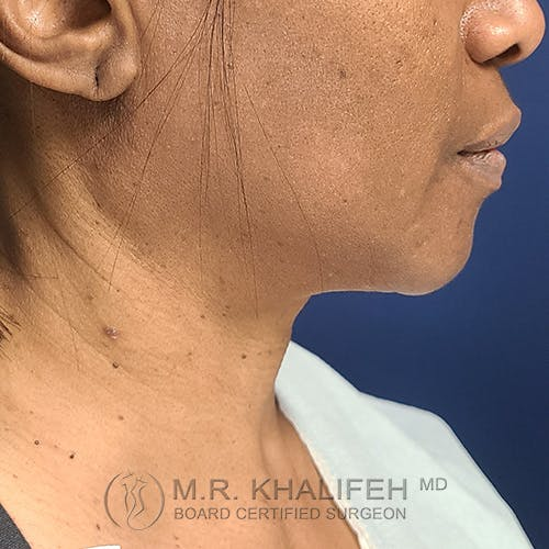 Neck Lift Gallery - Patient 48370044 - Image 3