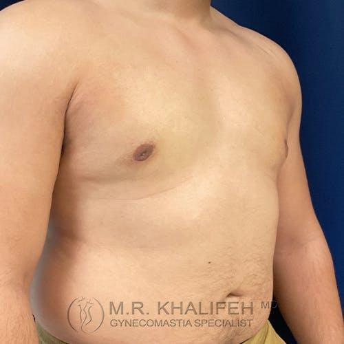 Gynecomastia Gallery - Patient 48826648 - Image 4