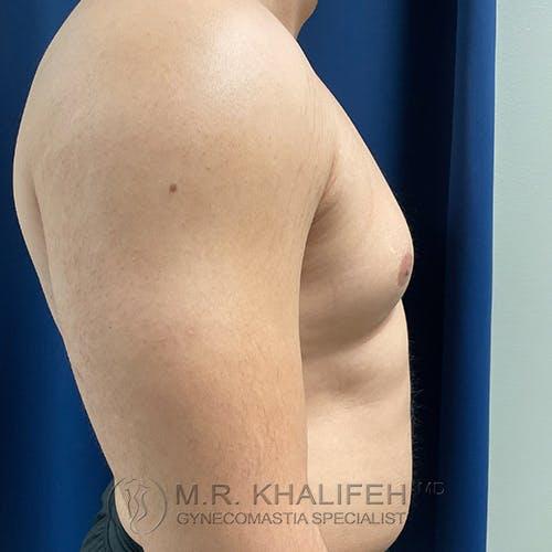 Gynecomastia Gallery - Patient 48826648 - Image 5