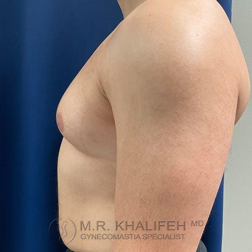 Gynecomastia Gallery - Patient 48826648 - Image 7