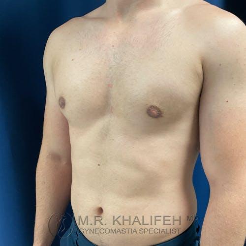 Gynecomastia Gallery - Patient 48826649 - Image 8