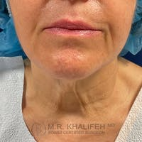 Neck Lift Gallery - Patient 54675818 - Image 1