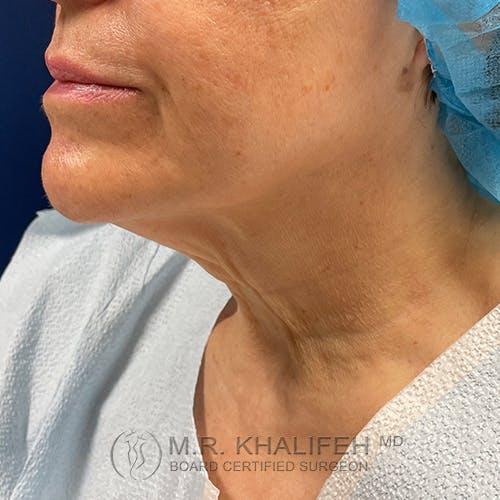 Neck Lift Gallery - Patient 54675818 - Image 7