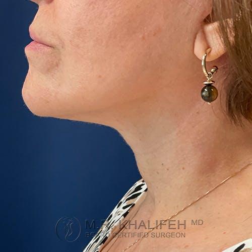 Neck Lift Gallery - Patient 54675818 - Image 10