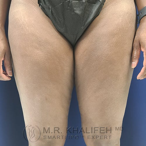 Inner Thigh Liposuction Gallery - Patient 54675833 - Image 1