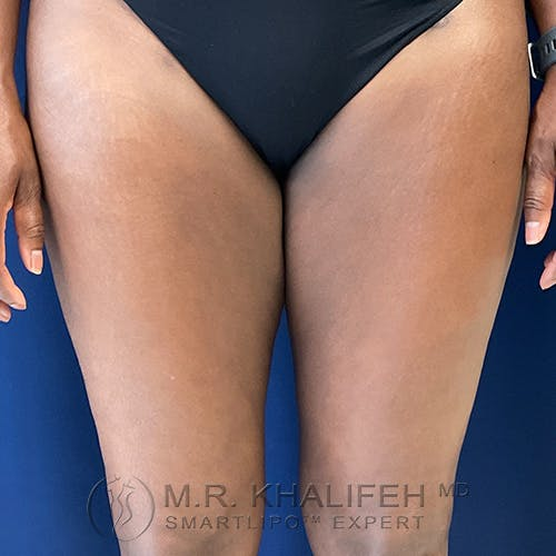 Inner Thigh Liposuction Gallery - Patient 54675833 - Image 2