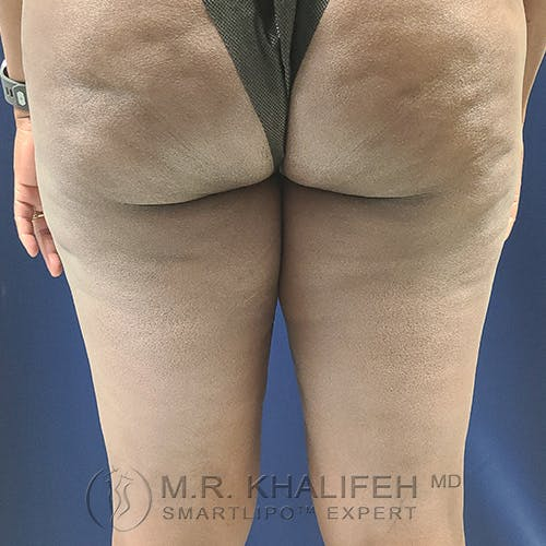 Inner Thigh Liposuction Gallery - Patient 54675833 - Image 3