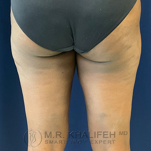 Inner Thigh Liposuction Gallery - Patient 54675833 - Image 4