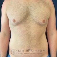 Gynecomastia Gallery - Patient 54675853 - Image 1