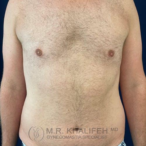 Gynecomastia Gallery - Patient 54675853 - Image 2