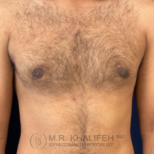 Gynecomastia Gallery - Patient 54675862 - Image 2
