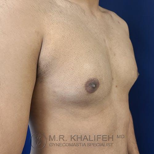 Gynecomastia Gallery - Patient 54675862 - Image 3