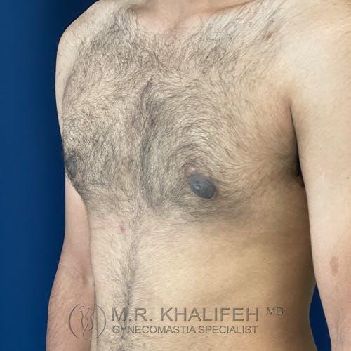 Gynecomastia Gallery - Patient 54675862 - Image 8