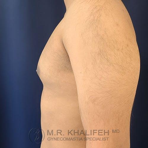 Gynecomastia Gallery - Patient 54675862 - Image 9