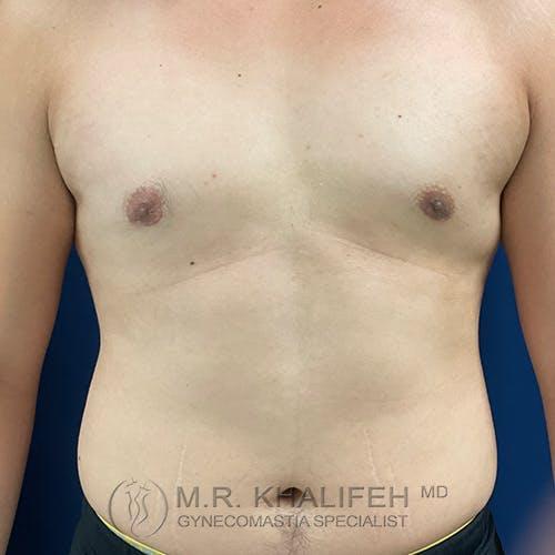 Gynecomastia Gallery - Patient 54675896 - Image 2