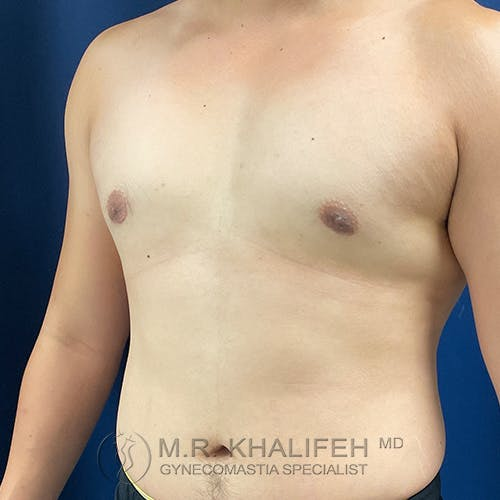 Gynecomastia Gallery - Patient 54675896 - Image 8