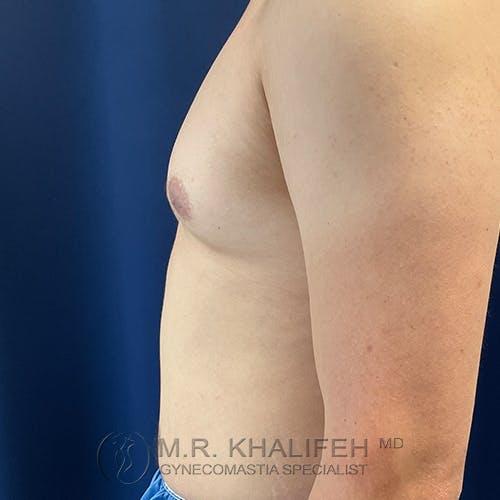 Gynecomastia Gallery - Patient 54675896 - Image 9