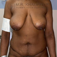Tummy Tuck Gallery - Patient 56377241 - Image 1