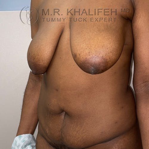 Tummy Tuck Gallery - Patient 56377241 - Image 7