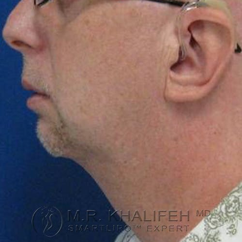 Chin Implant Gallery - Patient 57949922 - Image 4