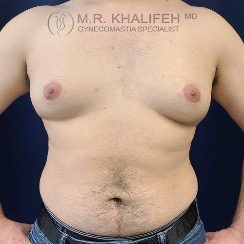 Gynecomastia Gallery - Patient 61120567 - Image 1
