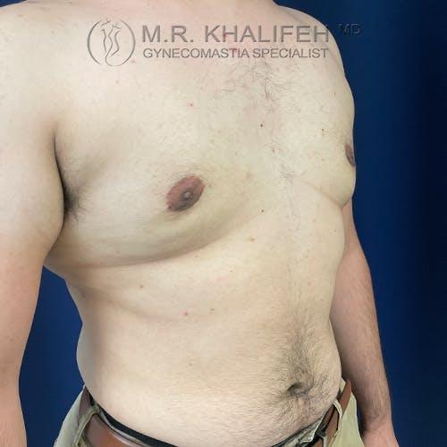 Gynecomastia Gallery - Patient 61120567 - Image 4