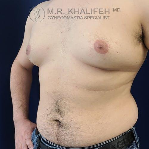 Gynecomastia Gallery - Patient 61120567 - Image 5