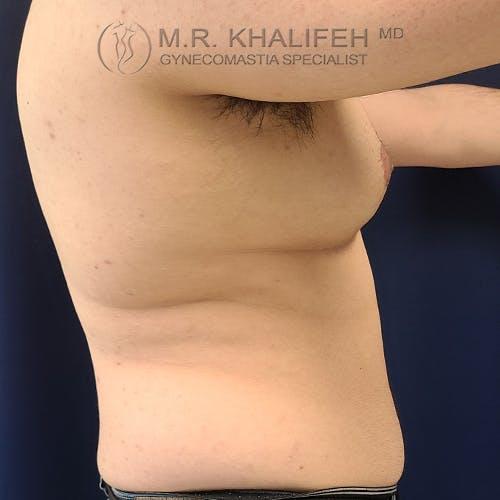 Gynecomastia Gallery - Patient 61120567 - Image 7