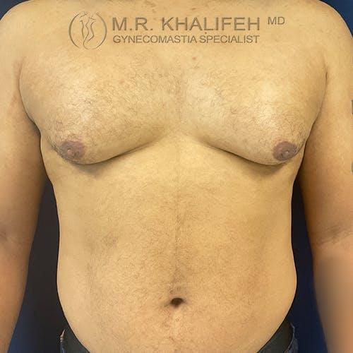 Gynecomastia Gallery - Patient 61120574 - Image 1